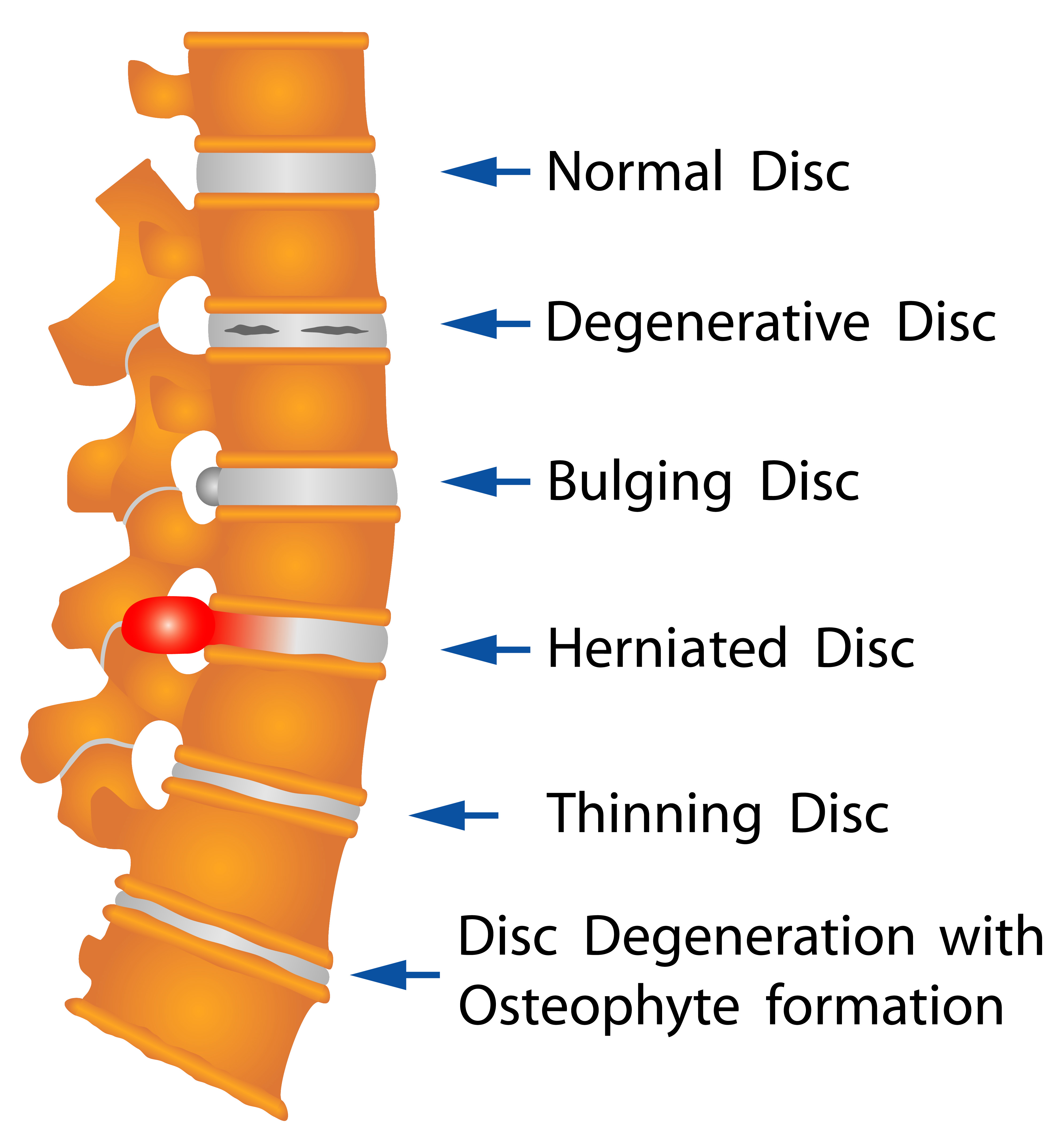 Herniated disc physical therapy - Discs Change As You Age And With Your General Activities When Herniated Or Rupture
